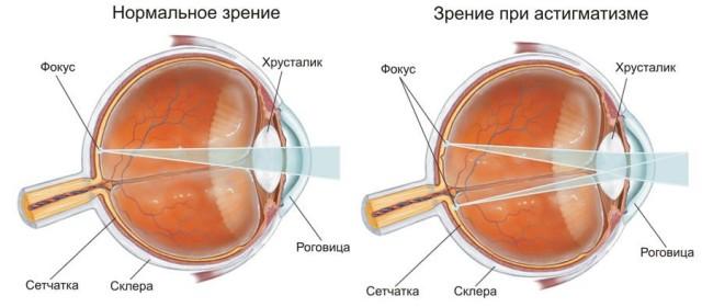 Схема заболевания астигматизма