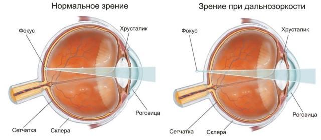 Фокусировка лучей в глазном яблоке