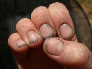 Грязь под ногтями