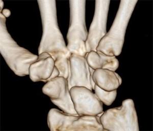 МРТ снимок руки