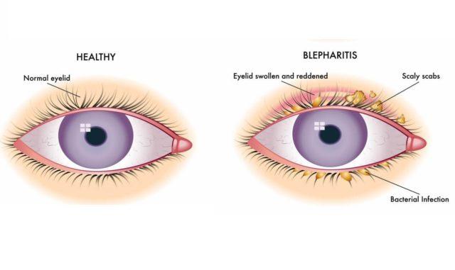 блефалит глаз