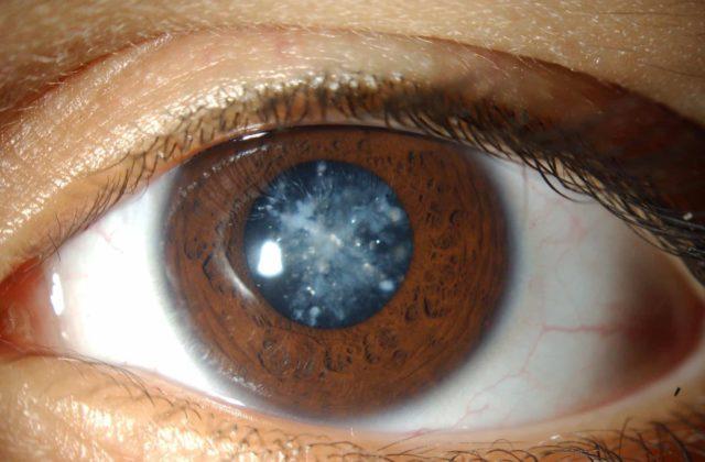 катаракта глаз
