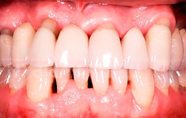 болезни зуб