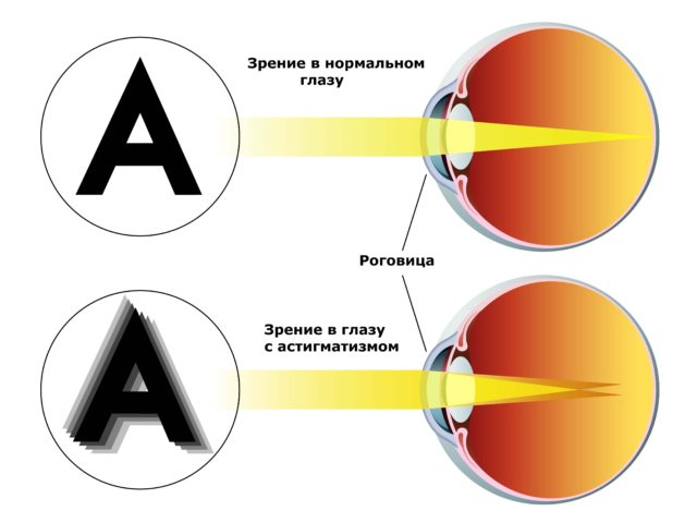 изображение астигматизма