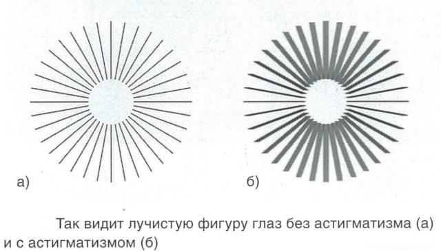 проявление астигматизма