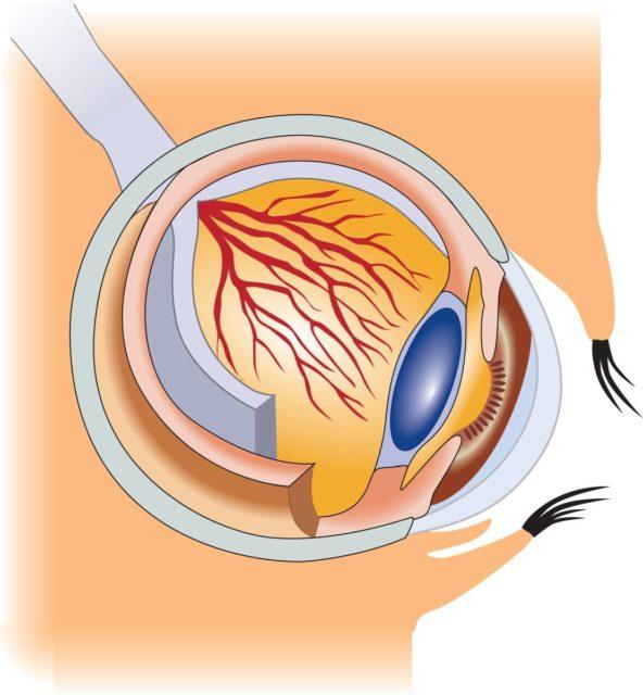 У супругов страдающих дальнозоркостью родился ребёнок с нормальным зрением