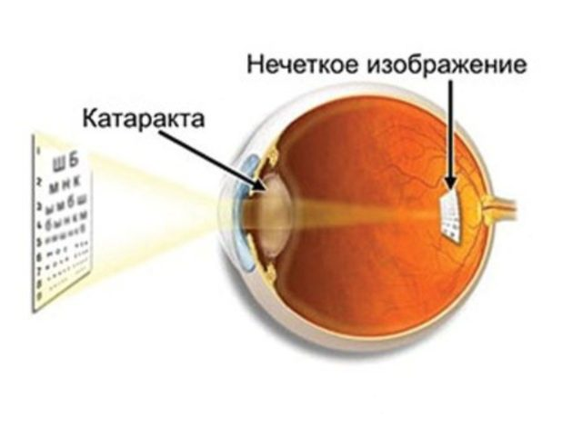 Возможна ли лазерная коррекция зрения после замены хрусталика