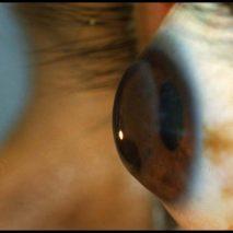 болезнь глаза