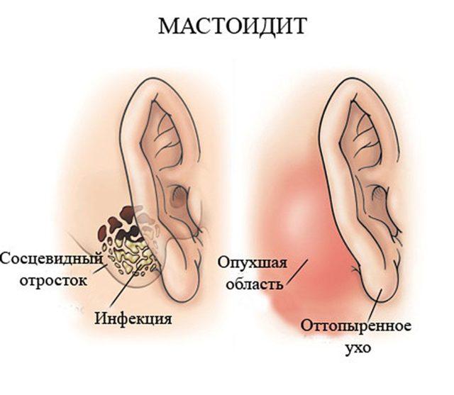 мастоидит