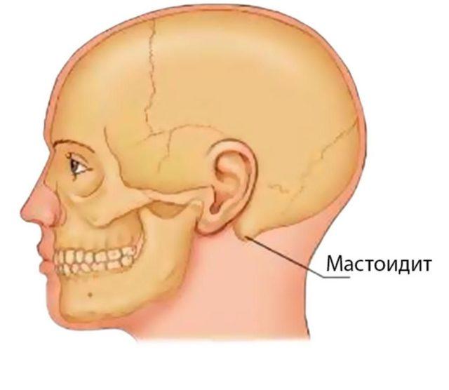 болезнь мастоидит