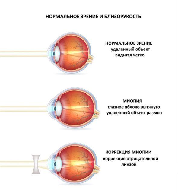 болезнь миопия