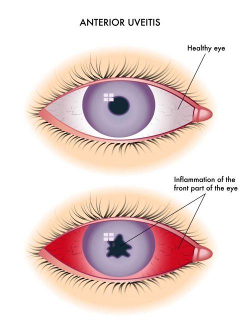 заболевания глаза